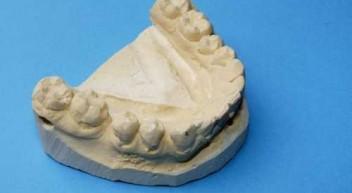 Zahnmedizinische Fachangestellte – mein Erfahrungsbericht
